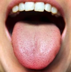 gezonde tong