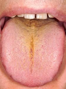 knalgele tong